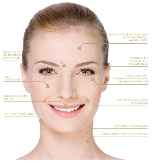 A-Lift Facial Treatments