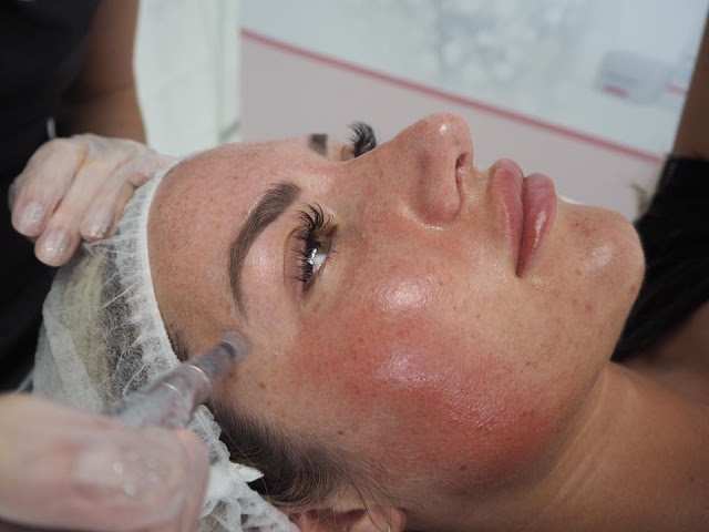 "Glamour – The UK's ""most high tech facial"" – does it work?"